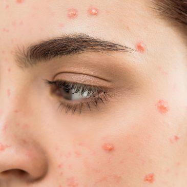 El acné no es una enfermedad