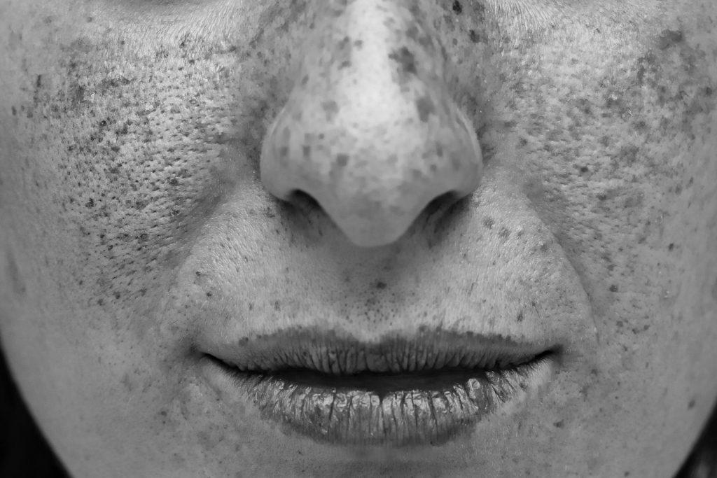 rostro femenino pecas visión ultravioleta